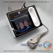 Аппарат для омоложения кожи HIFU SMAS Mart